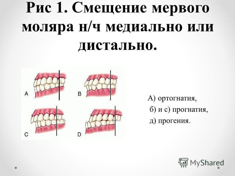 Рис 1. Смещение первого моляра н/ч медиально или дистально. А) ортогнатия, б) и с) прогнатия, д) прогения.