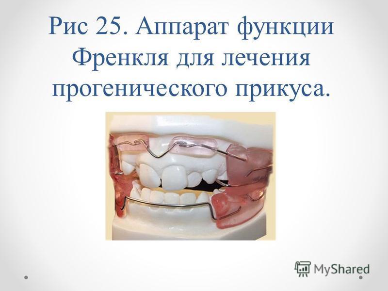 Рис 25. Аппарат функции Френкля для лечения прогенического прикуса.