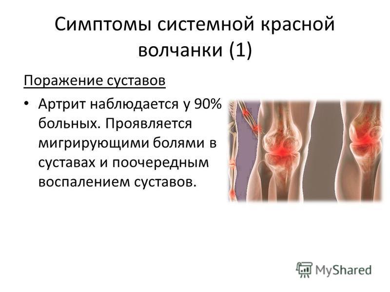 Симптомы системной красной волчанки (1) Поражение суставов Артрит наблюдается у 90% больных. Проявляется мигрирующими болями в суставах и поочередным воспалением суставов.