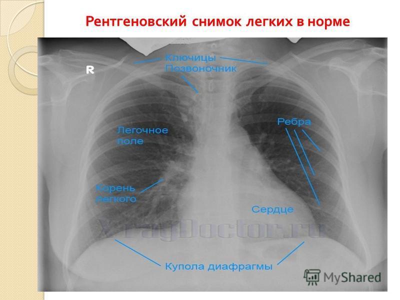 Рентгеновский снимок легких в норме