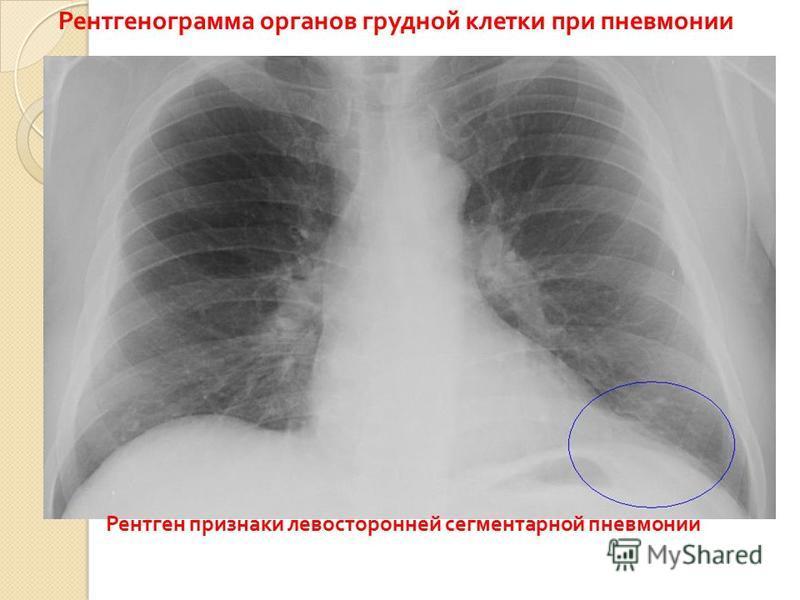 Рентгенограмма органов грудной клетки при пневмонии Рентген признаки левосторонней сегментарной пневмонии