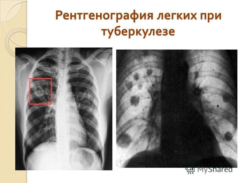 Рентгенография легких при ттуберкулезе