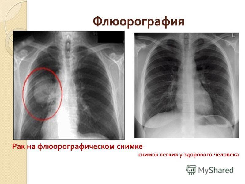 Флюорография Рак на флюорографическом снимке снимок легких у здорового человека