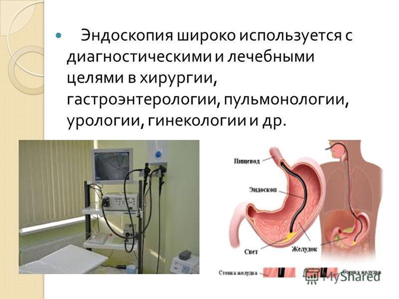 Эндоскопия широко используется с диагностическими и лечебными целями в хирургии, гастроэнтерологии, пульмонологии, урологии, гинекологии и др.