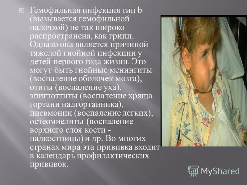 Гемофильная инфекция тип b ( вызывается гемофильной палочкой ) не так широко распространена, как грипп. Однако она является причиной тяжелой гнойной инфекции у детей первого года жизни. Это могут быть гнойные менингиты ( воспаление оболочек мозга ),