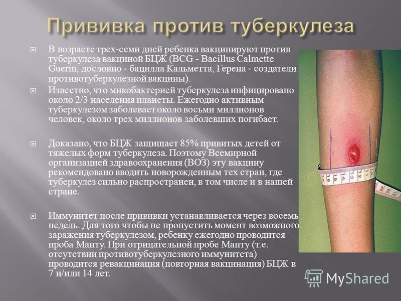 В возрасте трех - семи дней ребенка вакцинируют против туберкулеза вакциной БЦЖ (BCG - Bacillus Calmette Guerin, дословно - бацилла Кальметта, Герена - создатели противотуберкулезной вакцины ). Известно, что микобактерией туберкулеза инфицировано око