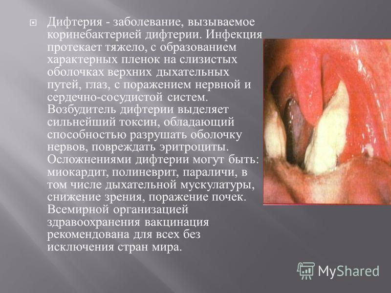 Дифтерия - заболевание, вызываемое коринебактерией дифтерии. Инфекция протекает тяжело, с образованием характерных пленок на слизистых оболочках верхних дыхательных путей, глаз, с поражением нервной и сердечно - сосудистой систем. Возбудитель дифтери