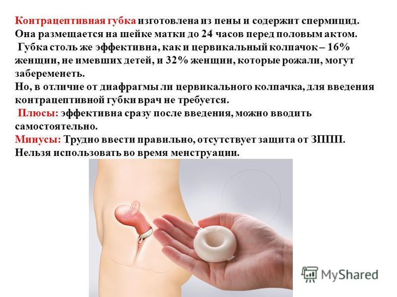 Контрацептивная губка изготовлена из пены и содержит спермицид. Она размещается на шейке матки до 24 часов перед половым актом. Губка столь же эффективна, как и цервикальный колпачок – 16% женщин, не имевших детей, и 32% женщин, которые рожали, могут