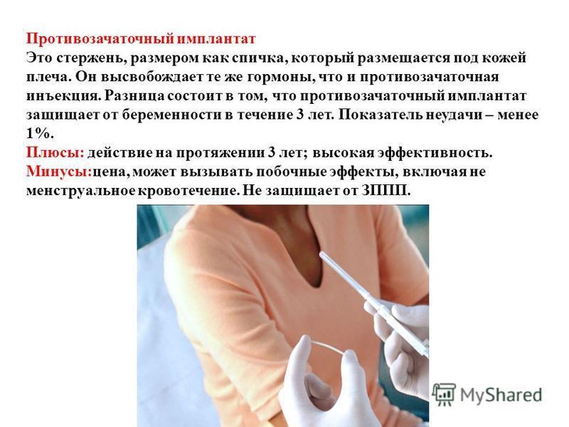 Противозачаточный имплантат Это стержень, размером как спичка, который размещается под кожей плеча. Он высвобождает те же гормоны, что и противозачаточная инъекция. Разница состоит в том, что противозачаточный имплантат защищает от беременности в теч