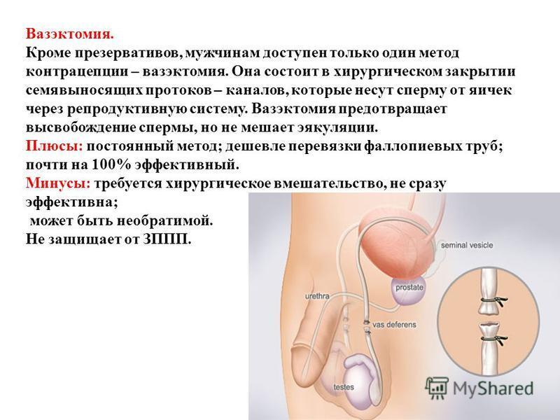 Вазэктомия. Кроме презервативов, мужчинам доступен только один метод контрацепции – вазэктомия. Она состоит в хирургическом закрытии семявыносящих протоков – каналов, которые несут сперму от яичек через репродуктивную систему. Вазэктомия предотвращае