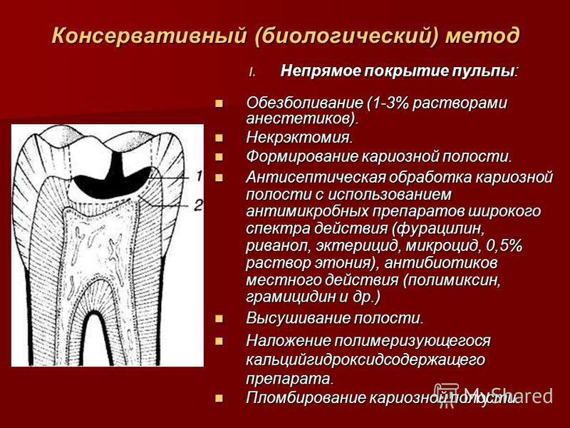 Способы лечения пульпита