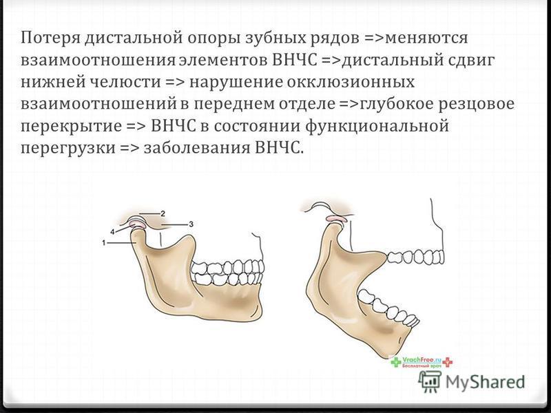 Потеря дистальной опоры зубных рядов =>меняются взаимоотношения элементов ВНЧС =>дистальный сдвиг нижней челюсти => нарушение окклюзионных взаимоотношений в переднем отделе =>глубокое резцовое перекрытие => ВНЧС в состоянии функциональной перегрузки
