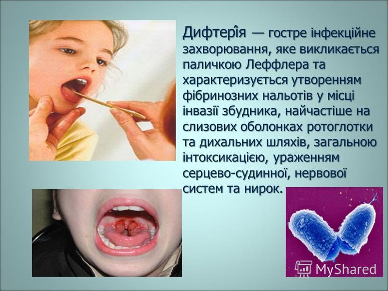 Дифтері́я гостре інфекційне захворювання, яке викликається паличкою Леффлера та характеризується утворенням фібринозних нальотів у місці інвазії збудника, найчастіше на слизових оболонках ротоглотки та дихальних шляхів, загальною інтоксикацією, ураже