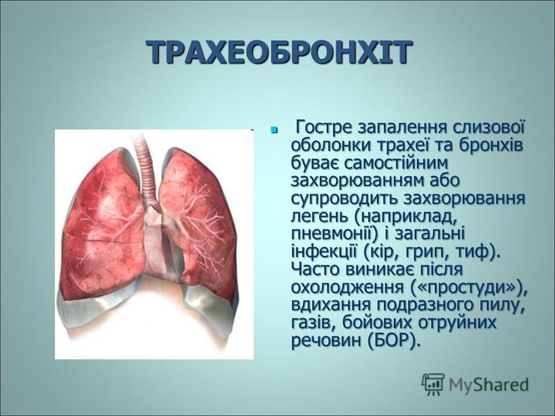 ТРАХЕОБРОНХІТ Гостре запалення слизової оболонки трахеї та бронхів буває самостійним захворюванням або супроводить захворювання легень (наприклад, пневмонії) і загальні інфекції (кір, грип, тиф). Часто виникає після охолодження («простуди»), вдихання