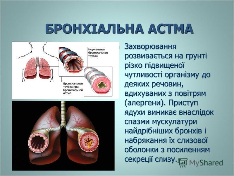 БРОНХІАЛЬНА АСТМА Захворювання розвивається на грунті різко підвищеної чутливості організму до деяких речовин, вдихуваних з повітрям (алергени). Приступ ядухи виникає внаслідок спазми мускулатури найдрібніших бронхів і набрякання їх слизової оболонки