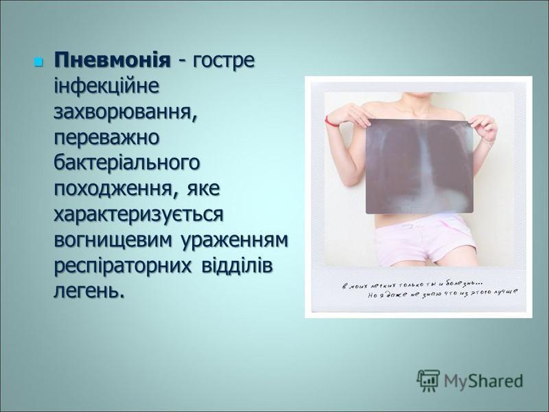 Пневмонія - гостре інфекційне захворювання, переважно бактеріального походження, яке характеризується вогнищевим ураженням респіраторних відділів легень. Пневмонія - гостре інфекційне захворювання, переважно бактеріального походження, яке характеризу