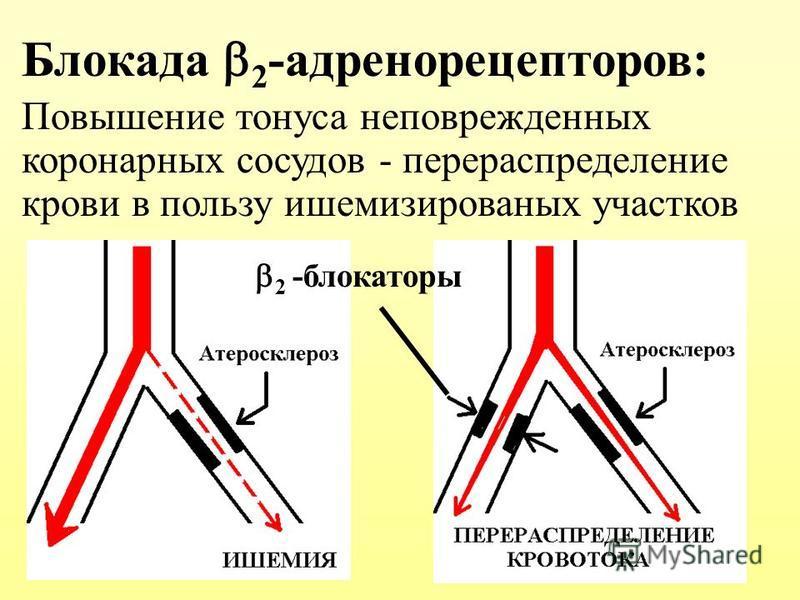 Блокада 2 -адренорецепторов: Повышение тонуса неповрежденных коронарных сосудов - перераспределение крови в пользу ишемизированых участков 2 -блокаторы
