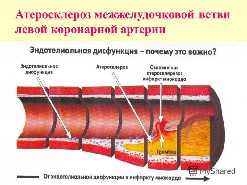 Атеросклероз межжелудочковой ветви левой коронарной артерии