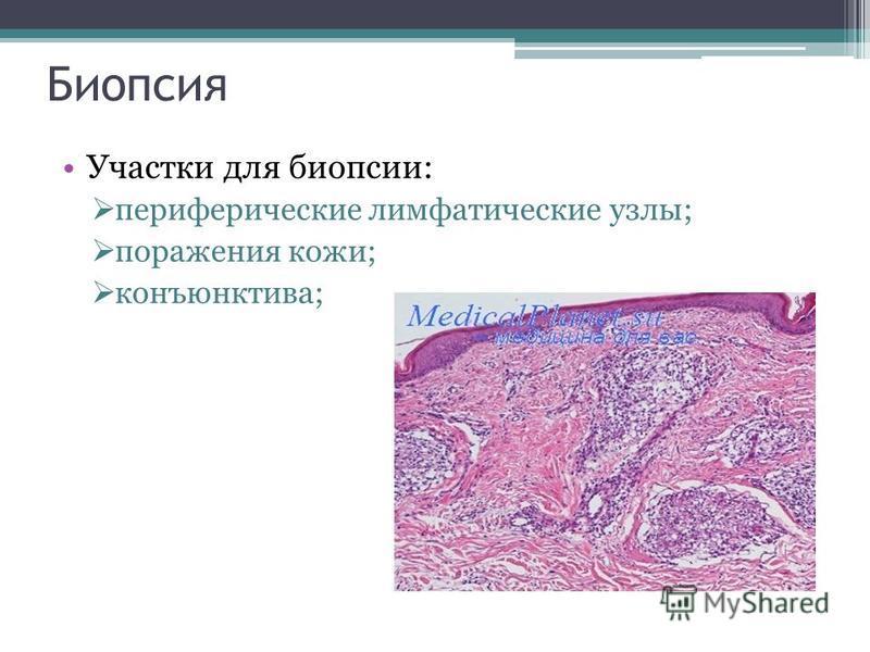 Биопсия Участки для биопсии: периферические лимфатические узлы; поражения кожи; конъюнктива;