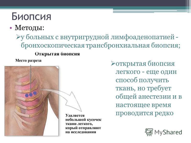 Биопсия Методы: у больных с внутригрудной лимфаденопатией - бронхоскопическая трансбронхиальная биопсия; открытая биопсия легкого - еще один способ получить ткань, но требует общей анестезии и в настоящее время проводится редко