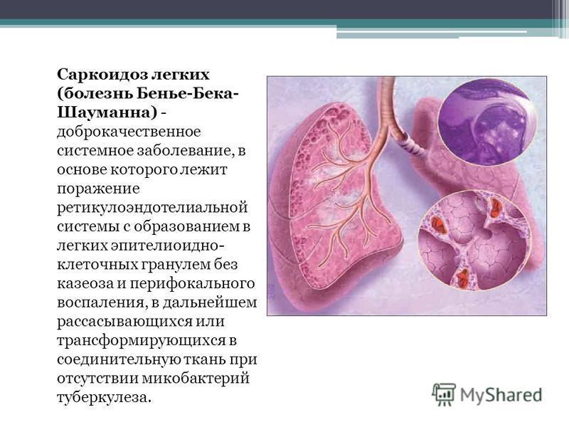Саркоидоз легких (болезнь Бенье-Бека- Шауманна) - доброкачественное системное заболевание, в основе которого лежит поражение ретикулоэндотелиальной системы с образованием в легких эпителиоидно- клеточных гранулем без казеоза и перифокального воспален