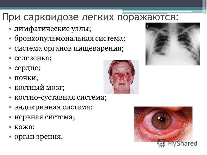 При саркоидозе легких поражаются: лимфатические узлы; бронхопульмональная система; система органов пищеварения; селезенка; сердце; почки; костный мозг; костно-суставная система; эндокринная система; нервная система; кожа; орган зрения.