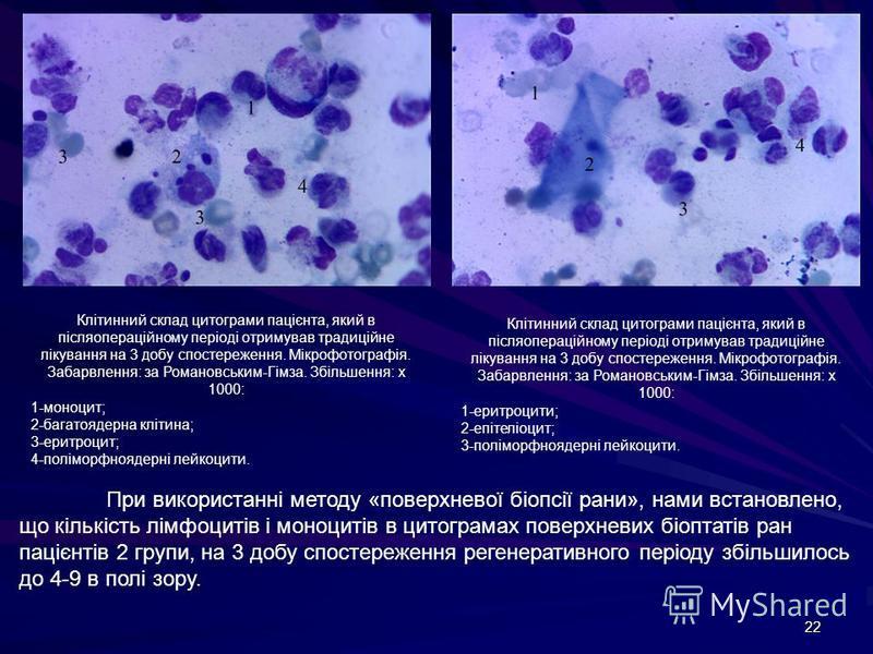 22 Клітинний склад цитограми пацієнта, який в післяопераційному періоді отримував традиційне лікування на 3 добу спостереження. Мікрофотографія. Забарвлення: за Романовським-Гімза. Збільшення: х 1000: 1-моноцит; 2-багатоядерна клітина; 3-еритроцит; 4
