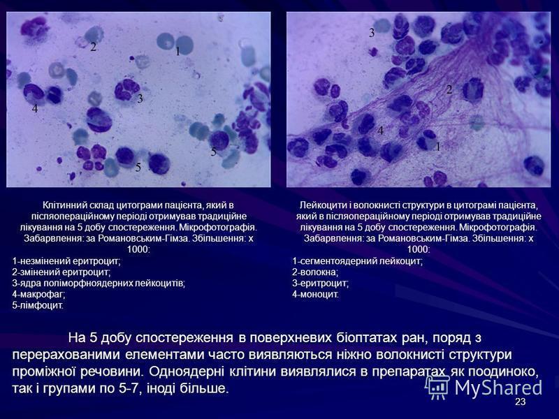 23 Клітинний склад цитограми пацієнта, який в післяопераційному періоді отримував традиційне лікування на 5 добу спостереження. Мікрофотографія. Забарвлення: за Романовським-Гімза. Збільшення: х 1000: 1-незмінений еритроцит; 2-змінений еритроцит; 3-я