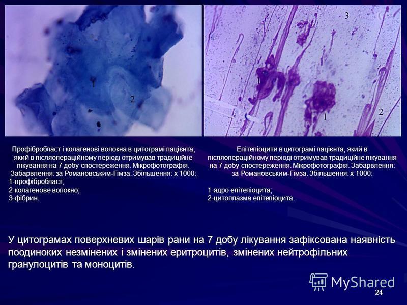 24 Профібробласт і колагенові волокна в цитограмі пацієнта, який в післяопераційному періоді отримував традиційне лікування на 7 добу спостереження. Мікрофотографія. Забарвлення: за Романовським-Гімза. Збільшення: х 1000: 1-профібробласт; 2-колагенов