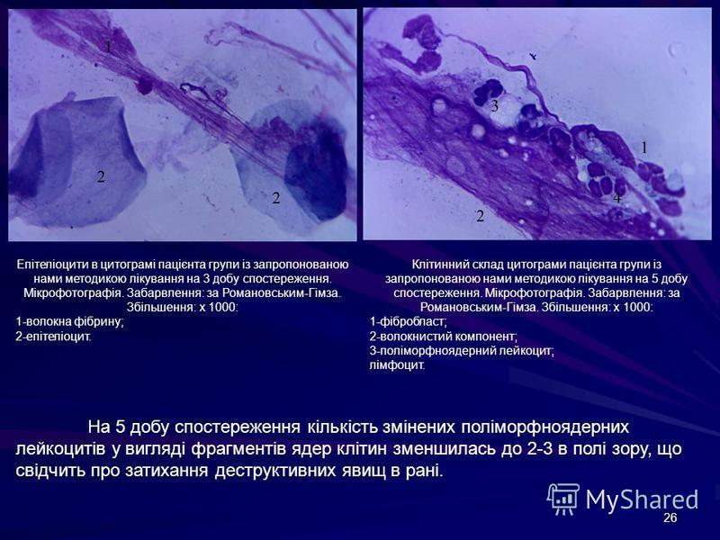 26 Епітеліоцити в цитограмі пацієнта групи із запропонованою нами методикою лікування на 3 добу спостереження. Мікрофотографія. Забарвлення: за Романовським-Гімза. Збільшення: х 1000: 1-волокна фібрину; 2-епітеліоцит. Клітинний склад цитограми пацієн