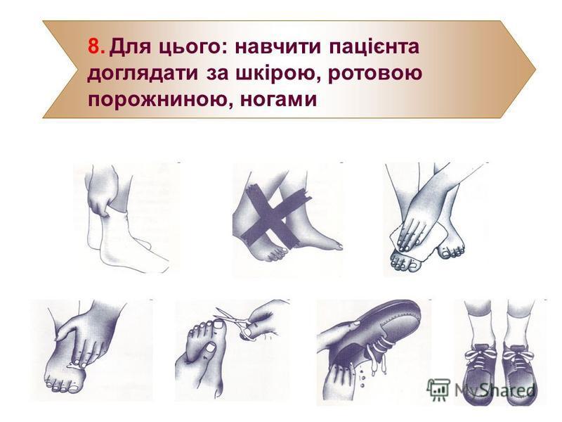 8. Для цього: навчити пацієнта доглядати за шкірою, ротовою порожниною, ногами