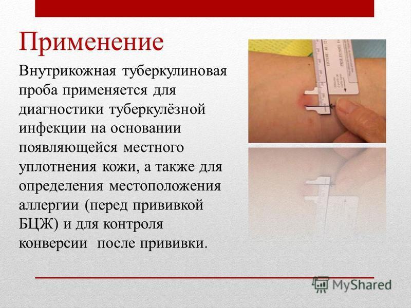 Применение Внутрикожная туберкулиновая проба применяется для диагностики туберкулёзной инфекции на основании появляющейся местного уплотнения кожи, а также для определения местоположения аллергии (перед прививкой БЦЖ) и для контроля конверсии после п