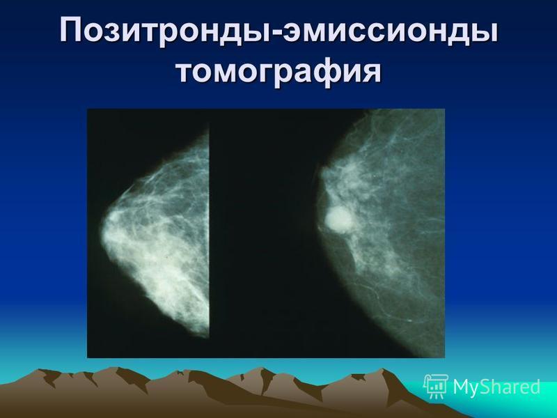 Позитронды-эмиссионды томография