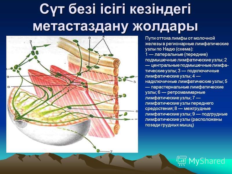Сүт безі ісігі кезіндегі метастаз дану жолдары Пути оттока лимфы от молочной железы в регионарные лимфатические узлы по Надю (схема): 1 латеральные (передние) подмышечные лимфатические узлы; 2 центральные подмышечные лимфа тические узлы; 3 подключич