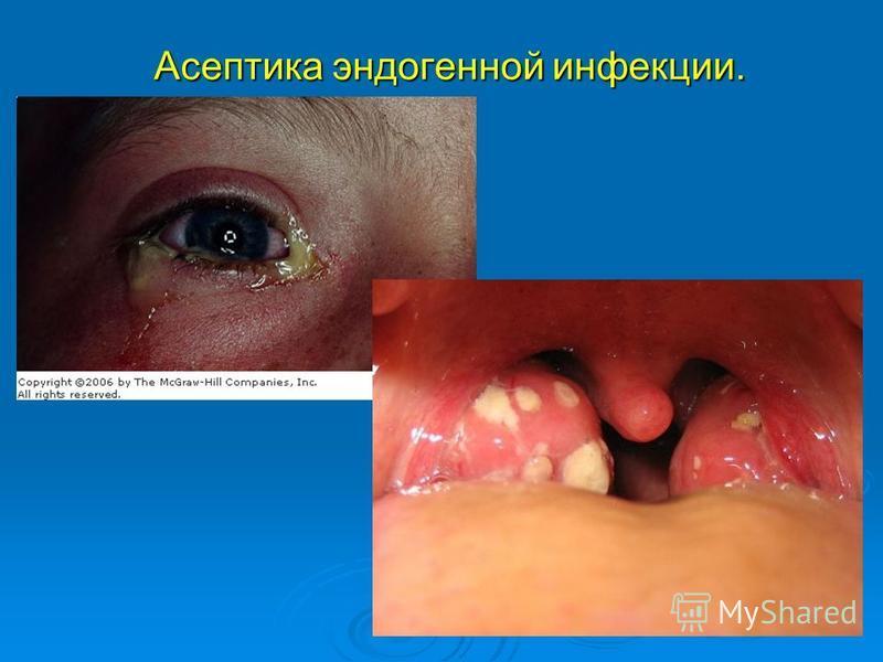Асептика эндогенной инфекции.