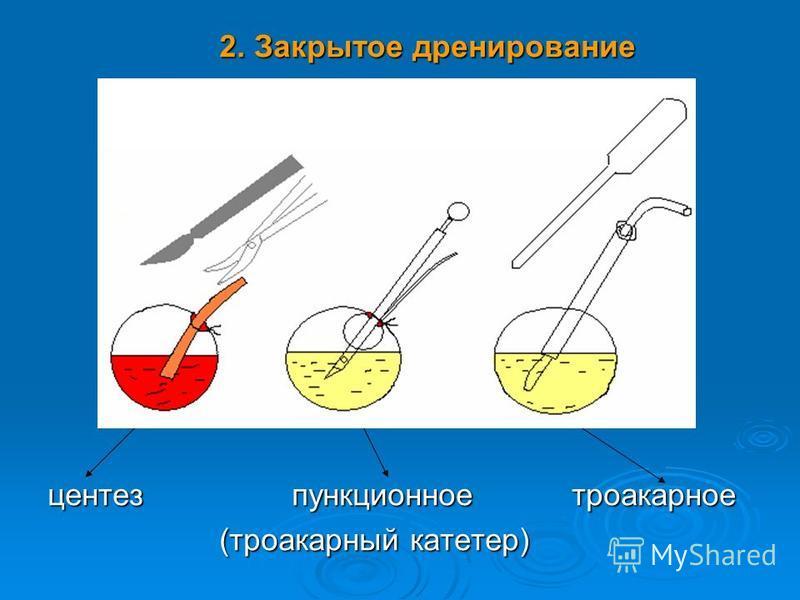 2. Закрытое дренирование 2. Закрытое дренирование центез пункционное троакарное центез пункционное троакарное (троакарный катетер) (троакарный катетер)