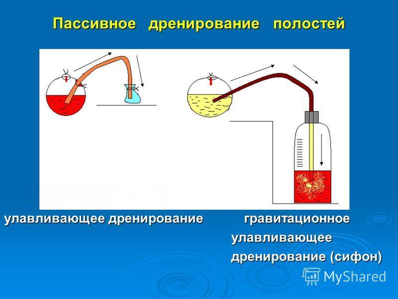 Пассивное дренирование полостей улавливающее дренирование гравитационное улавливающее улавливающее дренирование (сифон) дренирование (сифон)