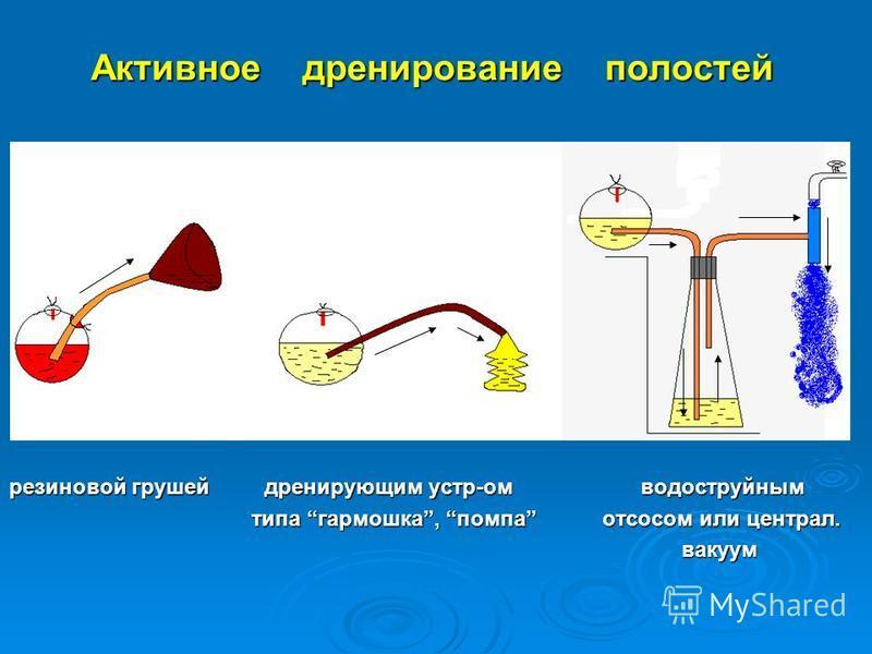 Активное дренирование полостей резиновой грушей дренирующим устр-ом водоструйным типа гармошка, помпа отсосом или централ. типа гармошка, помпа отсосом или централ. вакуум вакуум