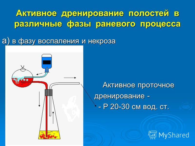Активное дренирование полостей в различные фазы раневого процесса а) в фазу воспаления и некроза Активное проточное Активное проточное дренирование - дренирование - - Р 20-30 см вод. ст. - Р 20-30 см вод. ст.