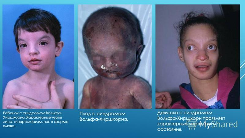 Ребенок с синдромом Вольфа- Хиршхорна. Характерные черты лица, гипертелоризм, нос в форме клюва. Плод с синдромом Вольфа-Хиршхорна. Девушка с синдромом Вольфа-Хиршхорн проявляет характерные черты этого состояния.
