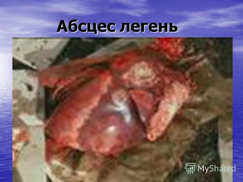 Абсцес легень Абсцес легень