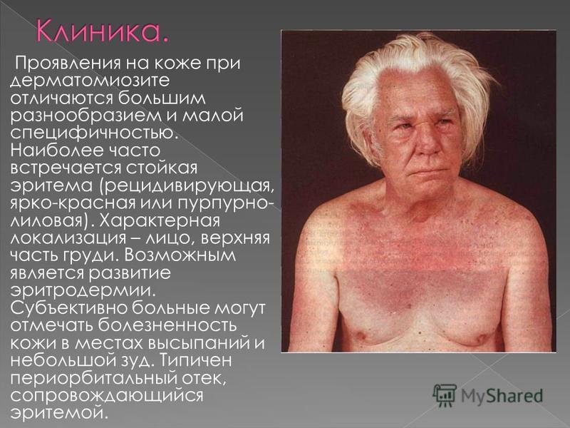Проявления на коже при дерматомиозите отличаются большим разнообразием и малой специфичностью. Наиболее часто встречается стойкая эритема (рецидивирующая, ярко-красная или пурпурно- лиловая). Характерная локализация – лицо, верхняя часть груди. Возмо