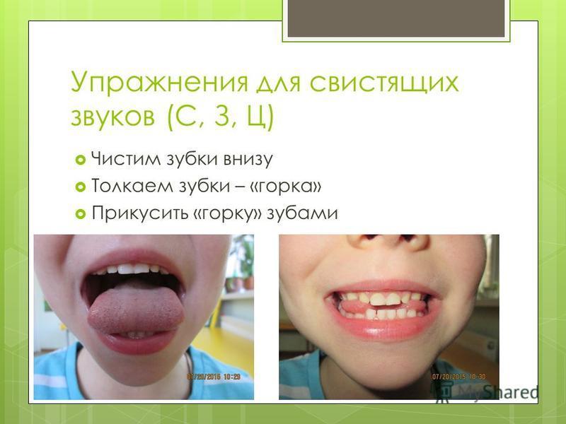Упражнения для свистящих звуков (С, З, Ц) Чистим зубки внизу Толкаем зубки – «горка» Прикусить «горку» зубами