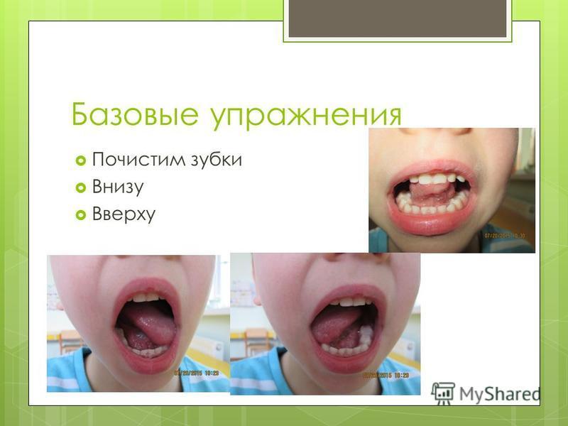 Базовые упражнения Почистим зубки Внизу Вверху