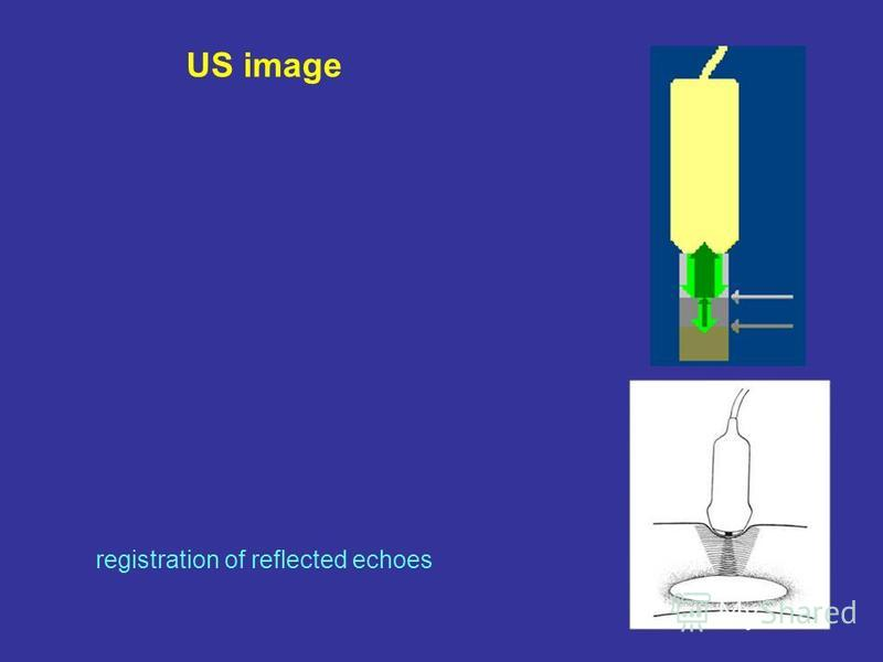 US image registration of reflected echoes
