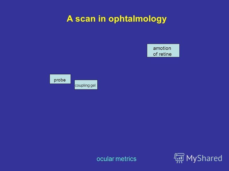 A scan in ophtalmology ocular metrics probe coupling gel amotion of retine