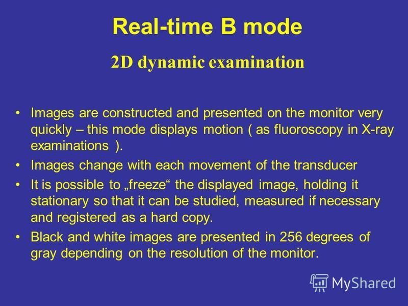 Real-time B mode Images are constructed and presented on the monitor very quickly – this mode displays motion ( as fluoroscopy in X-ray examinations ). Images change with each movement of the transducer It is possible to freeze the displayed image, h