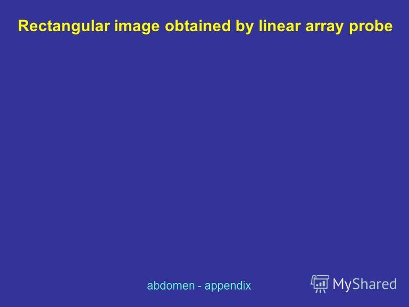 Rectangular image obtained by linear array probe abdomen - appendix