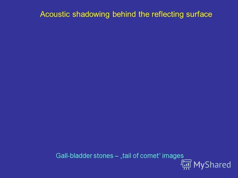 Acoustic shadowing behind the reflecting surface Gall-bladder stones – tail of comet images