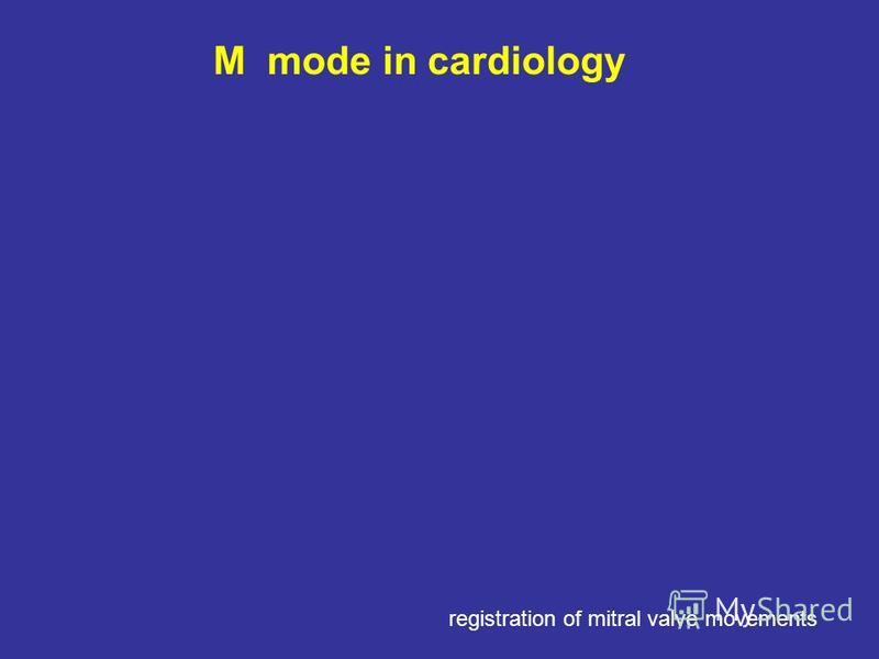 M mode in cardiology registration of mitral valve movements